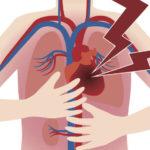 Sufrir un infarto en el gimnasio puede ser un accidente laboral.